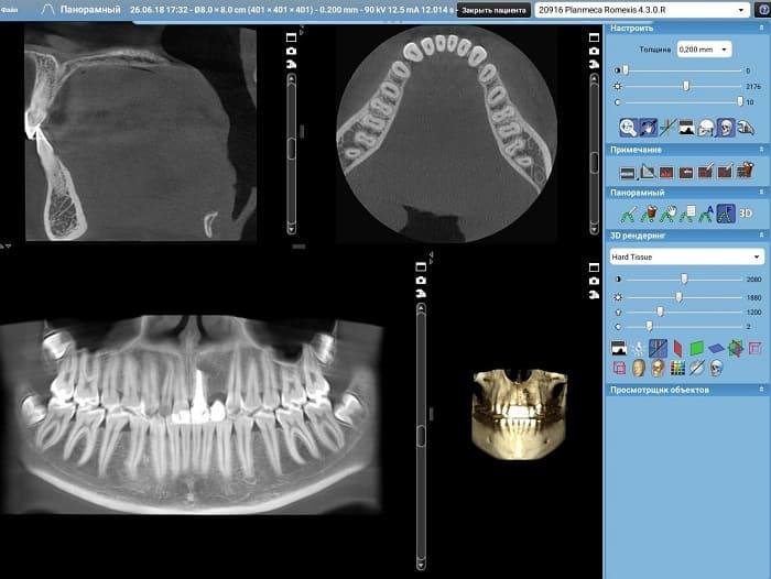 Компьютерная томография зубов. 3d диагностика зуба, цены. Снимок ...